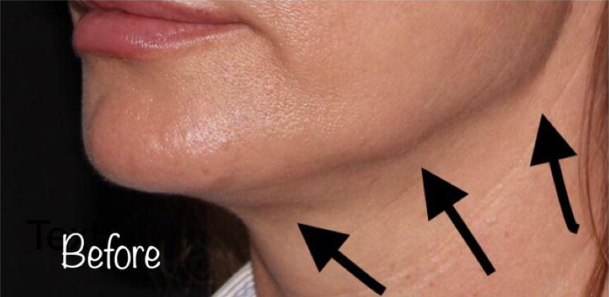 Before Nonsurgical Neck Lift
