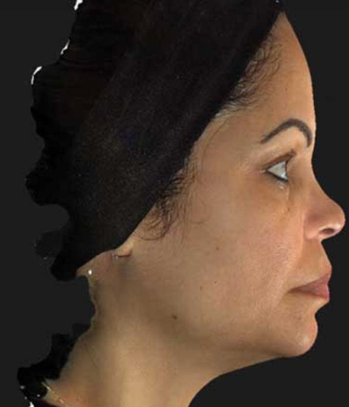 After Nonsurgical Neck Lift
