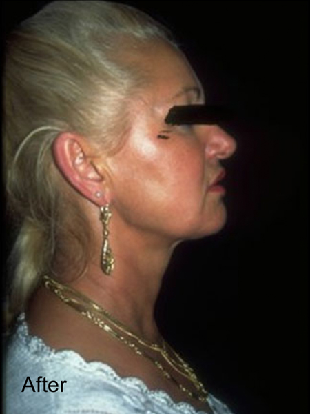 After Neck Lipo