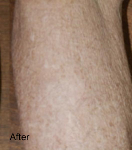 After C02 Laser Skin Resurfacing