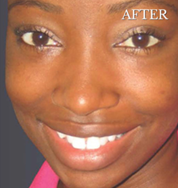 After Chemical Peels