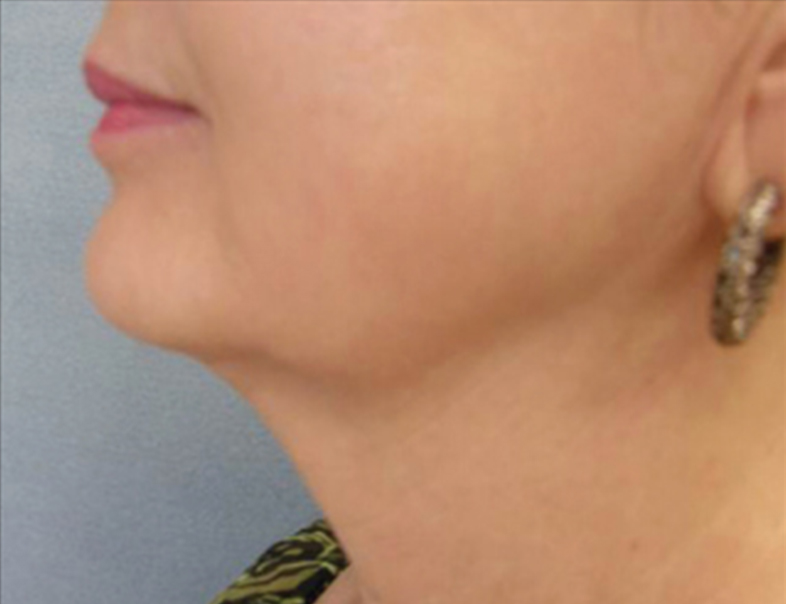 After Relift Skin Tightening and Fat Melting Lower Face