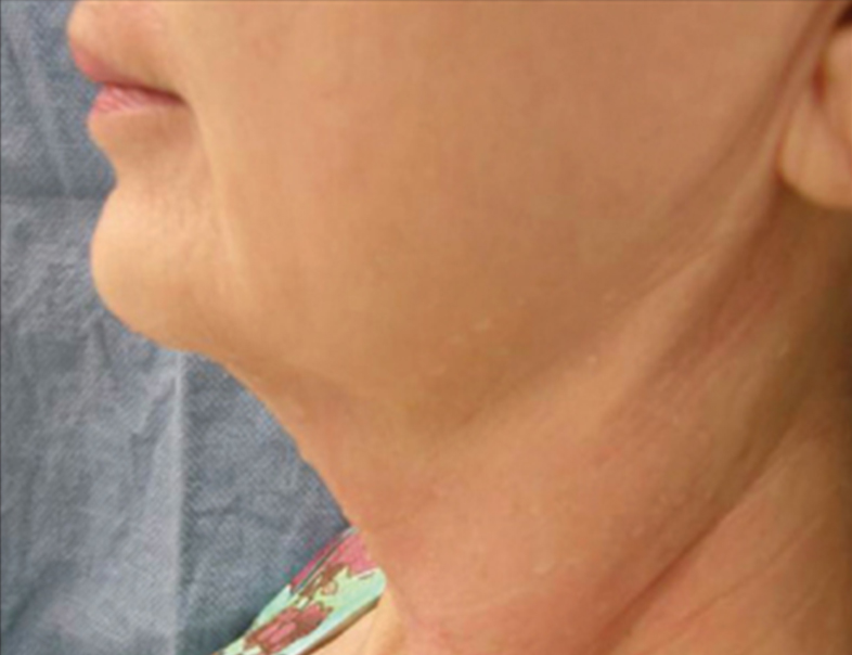 Before Relift Skin Tightening and Fat Melting Lower Face