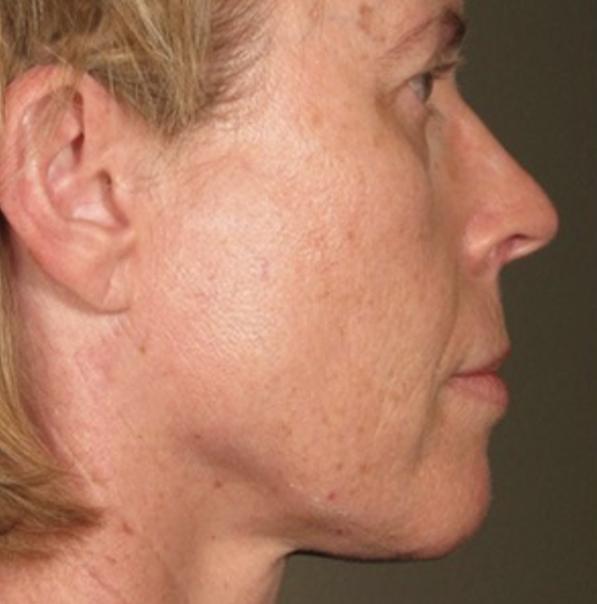 After Viora VST Skin Tightening