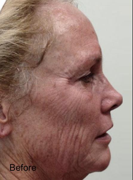 Before C02 Laser Skin Resurfacing