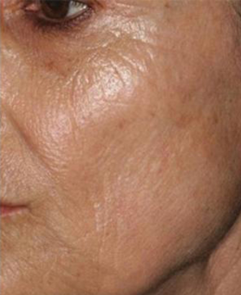 After Microneedling