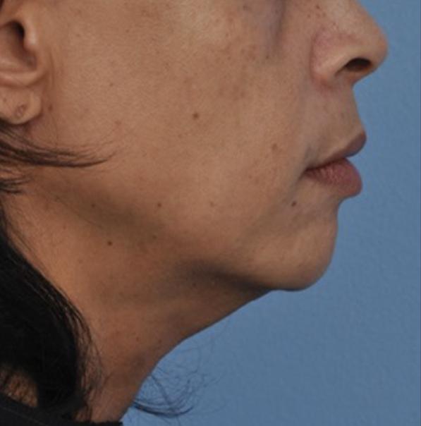 Before Viora VST Skin Tightening