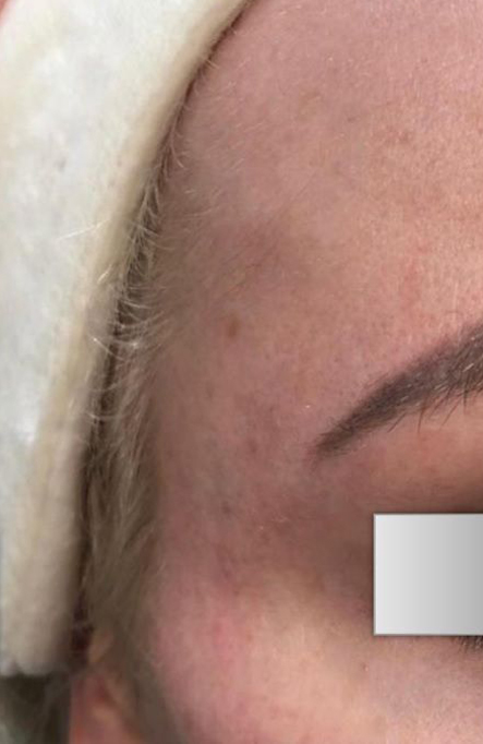 After Nonsurgical Temples Contouring