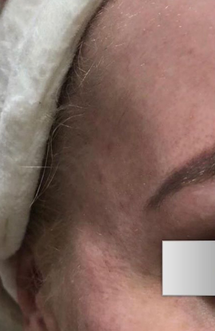 Before Nonsurgical Temples Contouring
