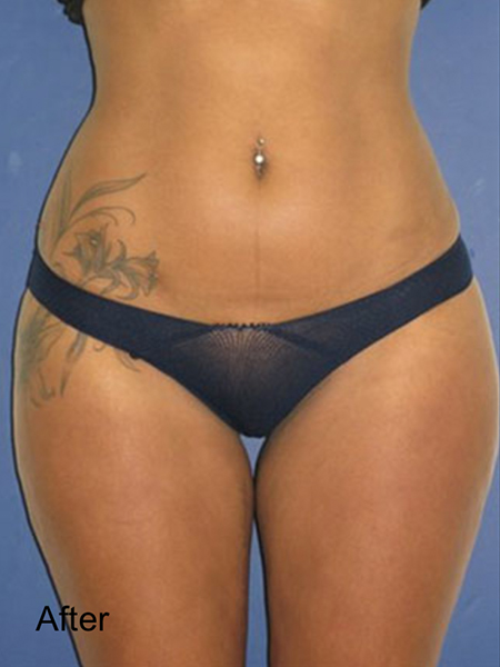 After Thighs Lipo