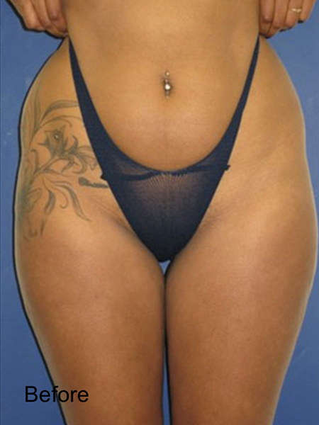Before Thighs Lipo
