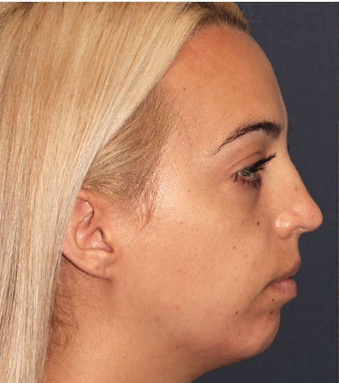 Before Non-Surgical Lower Face Lifting and Jaw Contouring
