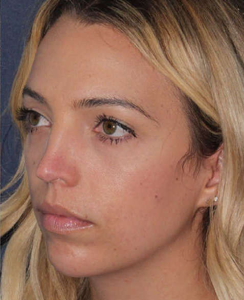 After Non-Surgical Lower Face Lifting and Jaw Contouring