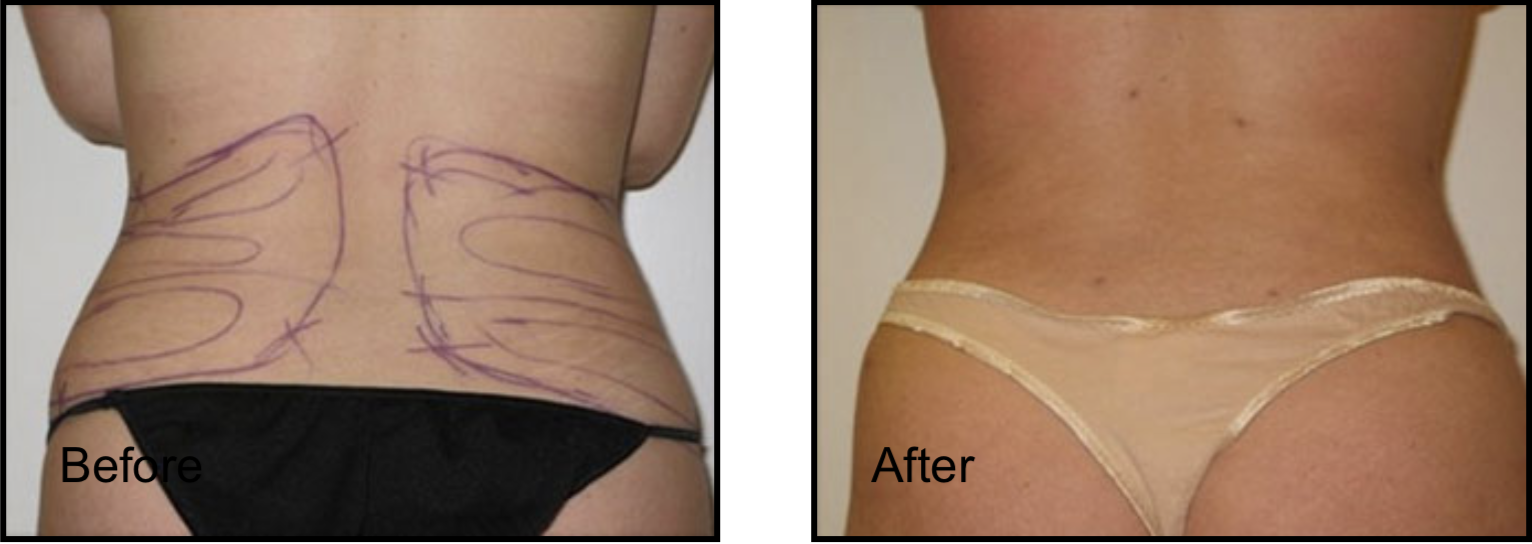 Hips Before & After