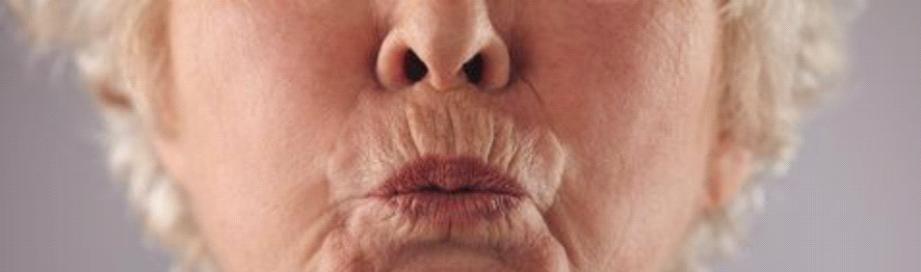Barcode Lip Line