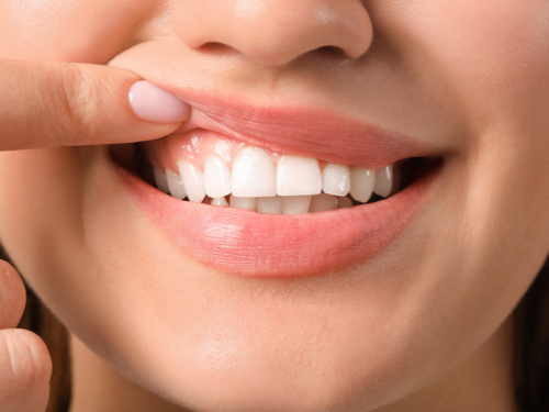 How Do You Improve Gum Health?
