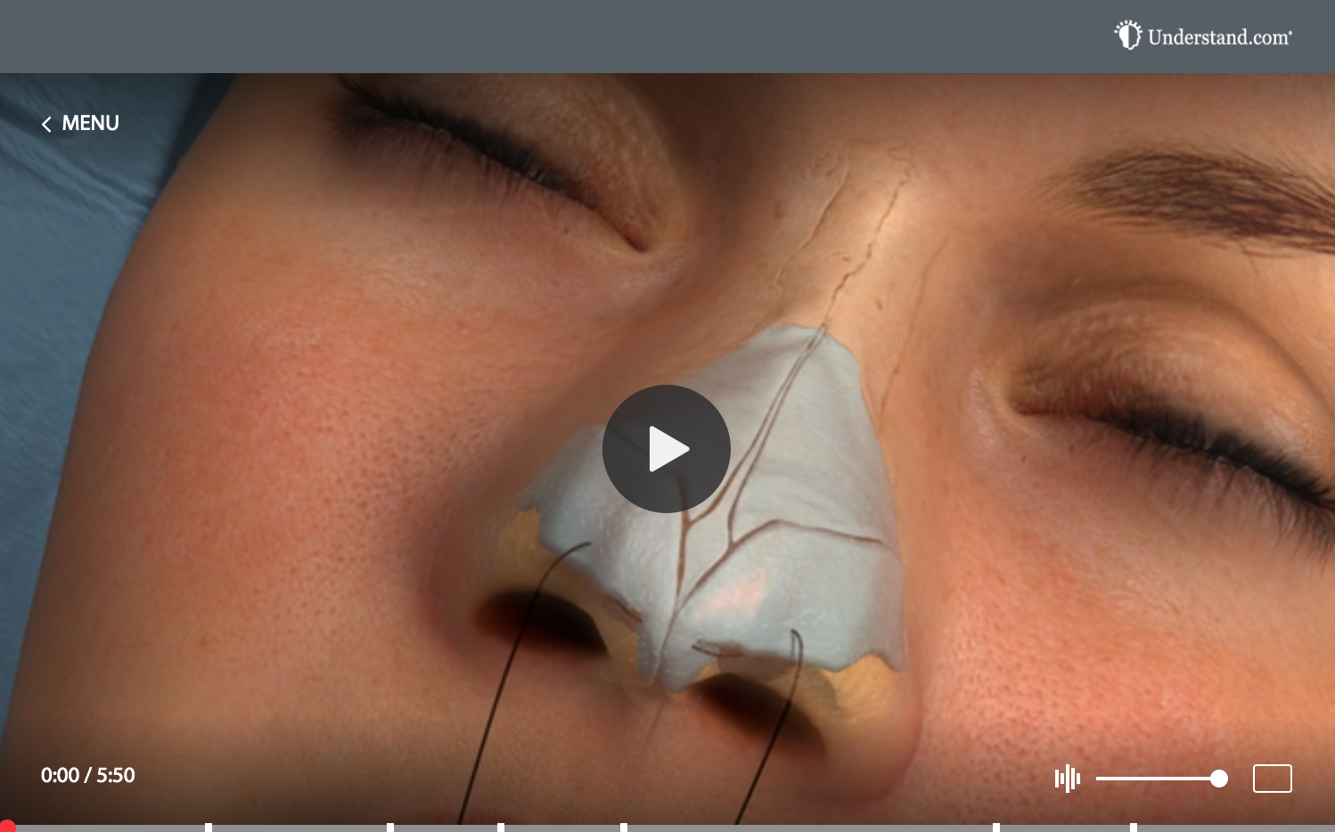 Rhinoplasty Video