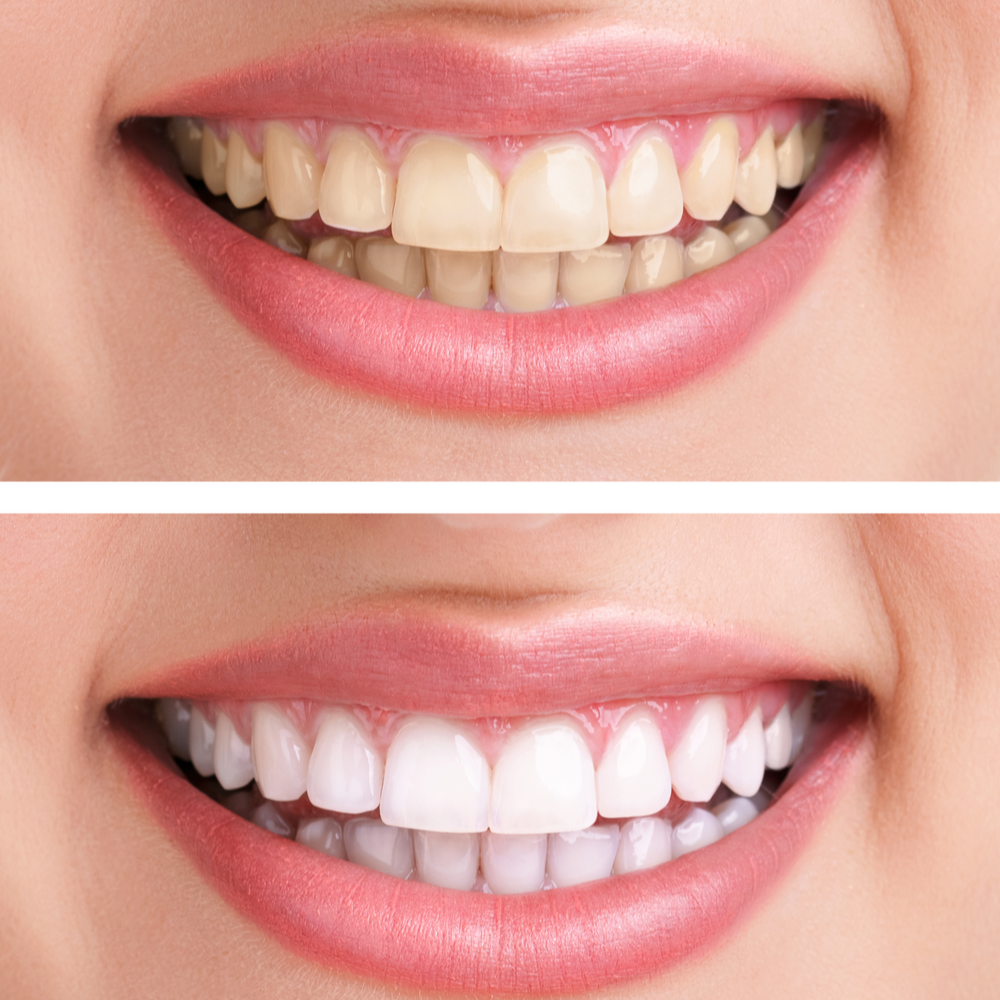 What Should You Not Do After Zoom Teeth Whitening?