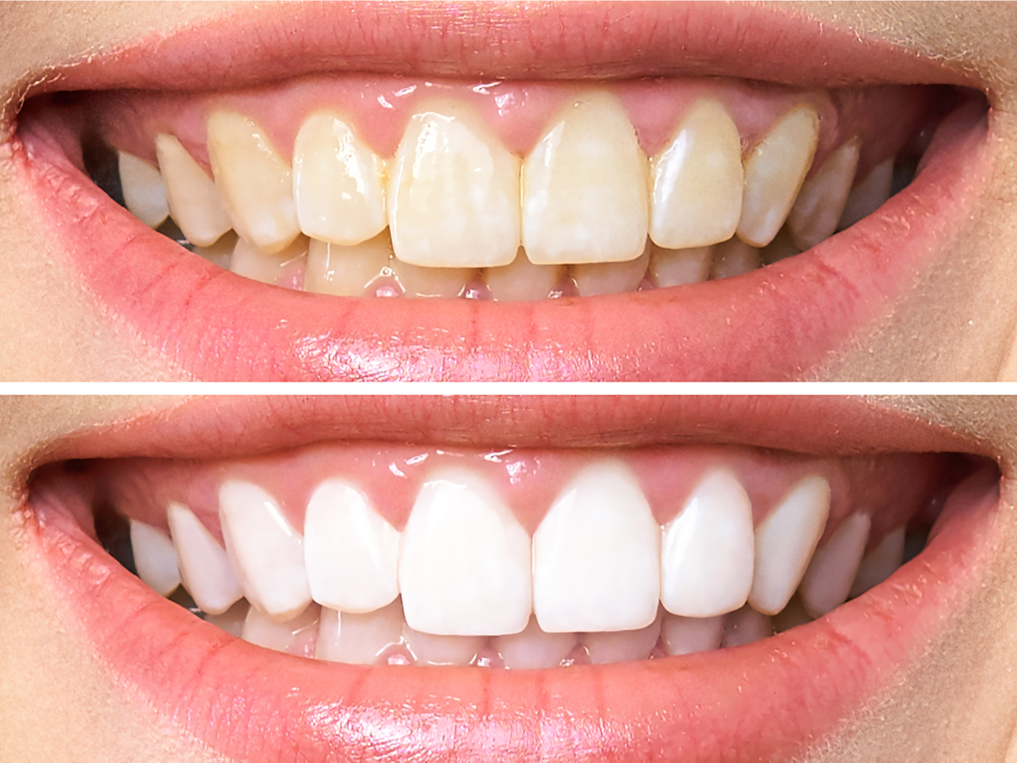 Tips to Preserve the Results of Professional Teeth Whitening