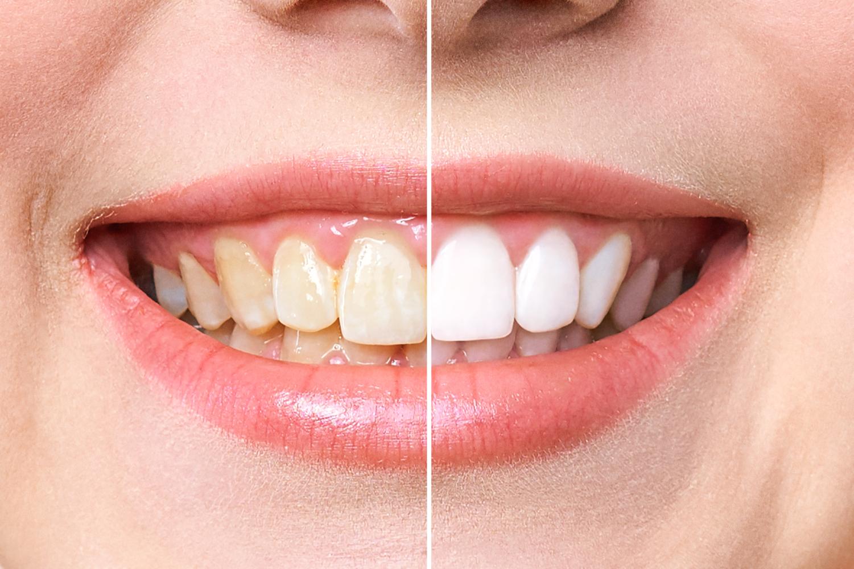 Zoom! Teeth Whitening FAQs