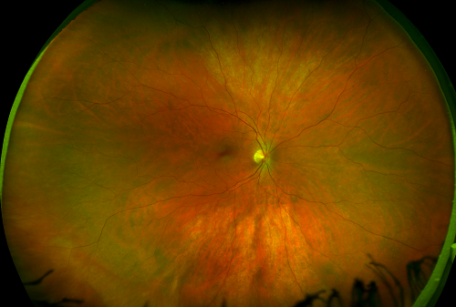 eye with diabetic retinopathy