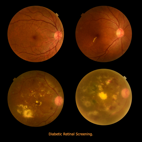diabetic retinal screening