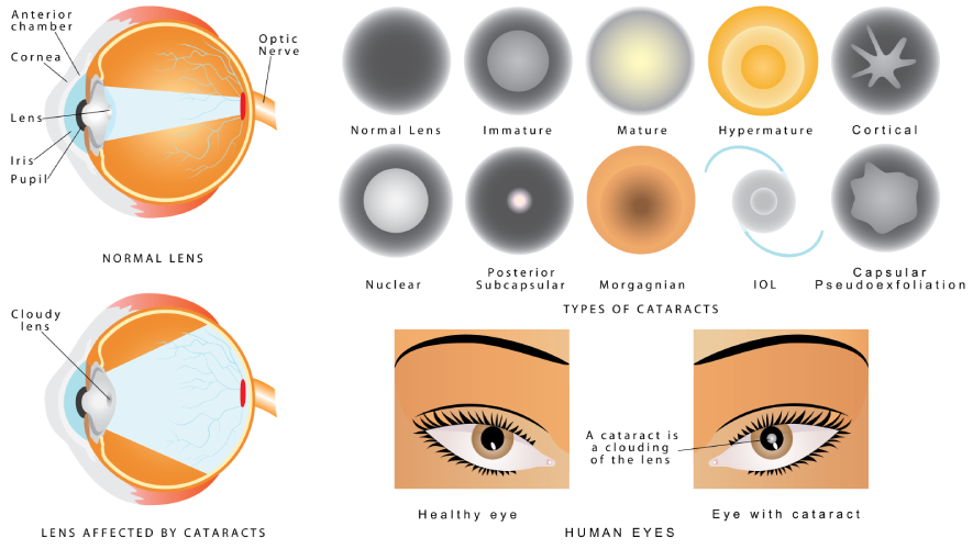 eye disorders