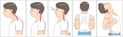 New Study Finds One Simple Exercise Helps Restore The Normal Neck Curve and Relieve Neck Pain