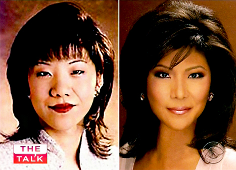 Before and After Asian Plastic Surgery