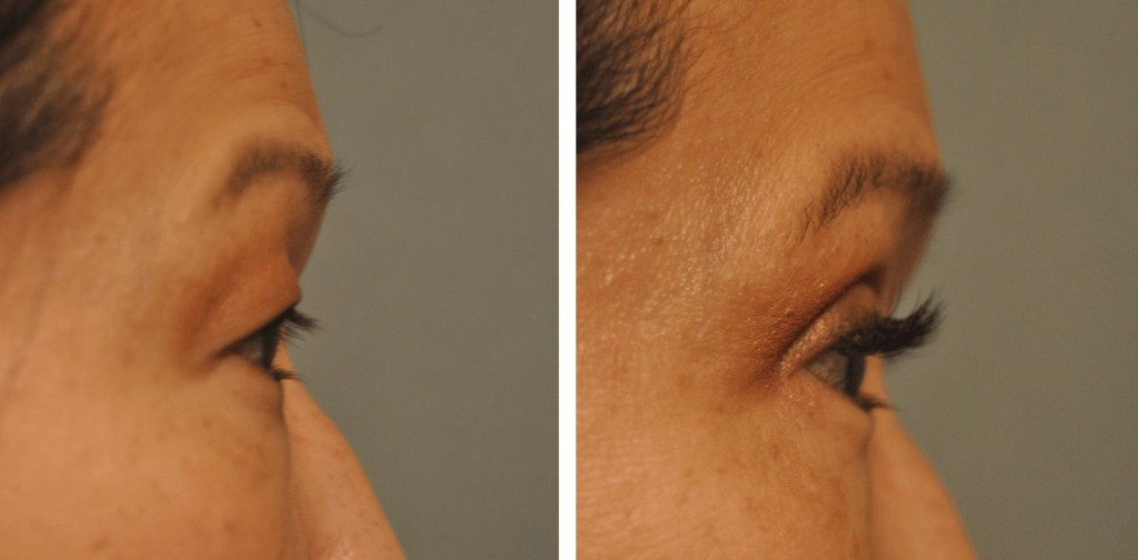Asian Double Fold at Changes Plastic Surgery