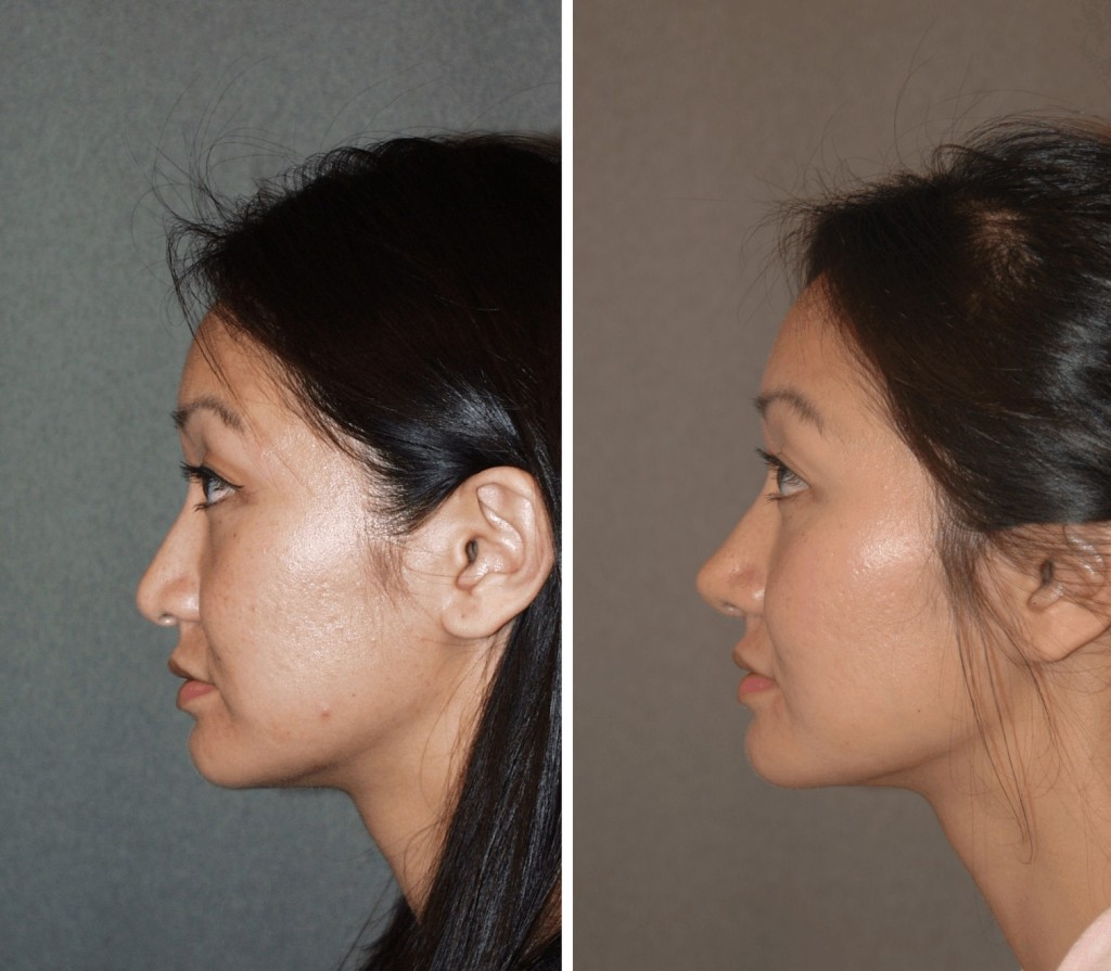 Asian Rhinoplasty at Changes Plastic Surgery