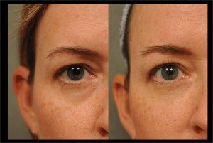 Restylane to Undereyes at Changes Plastic Surgery & Spa