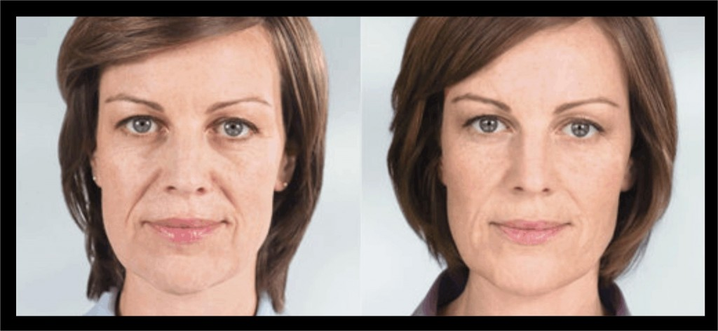 Sculptra to add volume