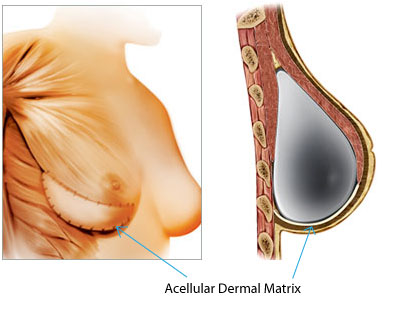 Acellular-Dermal-Matrix