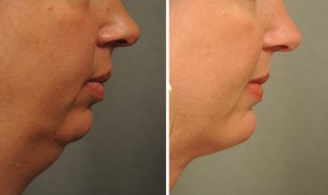 #Liposuction of the neck
