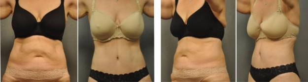 Blog Tummy Tuck Lipo Laser-2