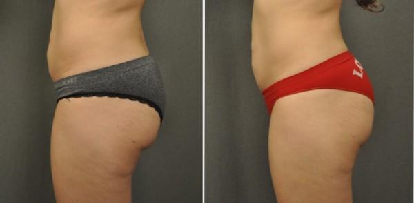 Brazilian Butt Lift cps