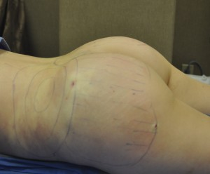 Intraoperative Fat Grafting to Buttocks
