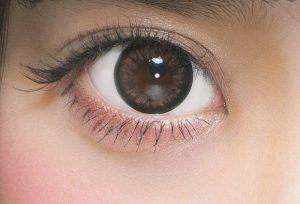 asian-double-fold-eyelid-plastic-surgery-san-diego