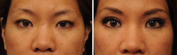 asian-double-fold-eyelid-14