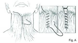 Corset Plastysmaplasty Figure A