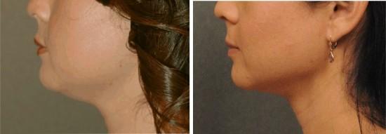 Neck Liposuction San Diego Plastic Surgery Blog