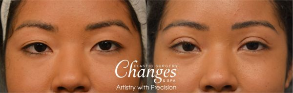 Asian Double Fold Eyelid Surgery