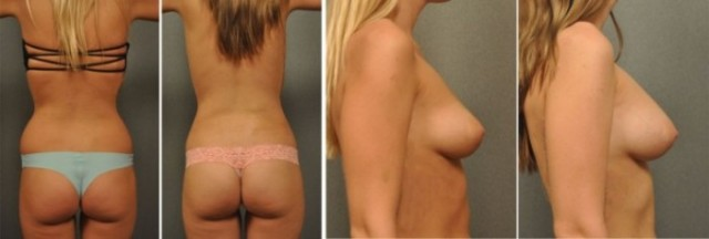 Fat Grafting to Breasts 228247