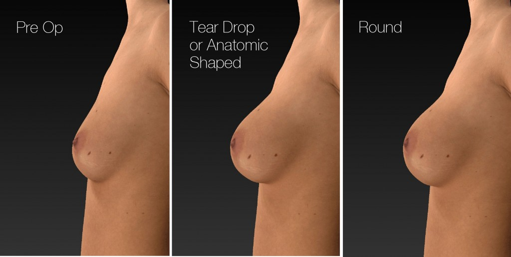 Implants at Changes Plastic Surgery