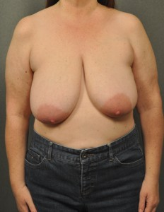 Breast Reduction 22498
