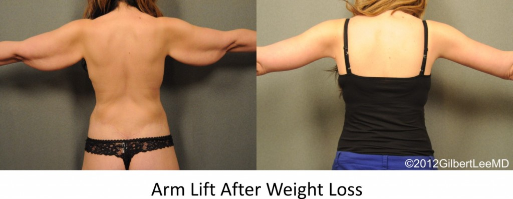 Arm Lift after weight loss at Changes Plastic Surgery