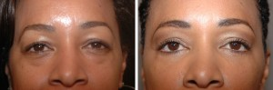 Fat Grafting to Undereyes 2