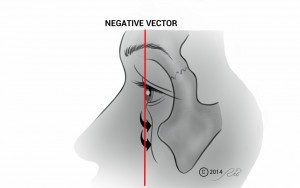 Negative Vector Under Eye Hollow