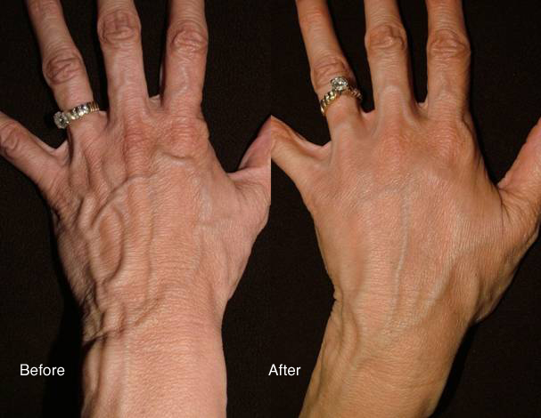 Radiesse handrejuvenation
